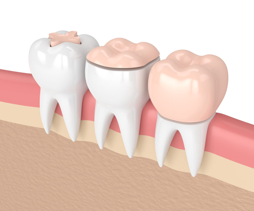 Examples of inlays and onlays - cosmetic dental options in Sherman Oaks.